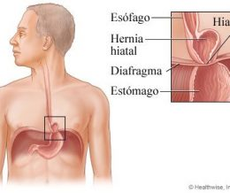 Hernie hiatale et ostéopathie